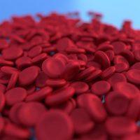 anemi nasıl bir hastalıktır