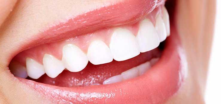 beyaz diş