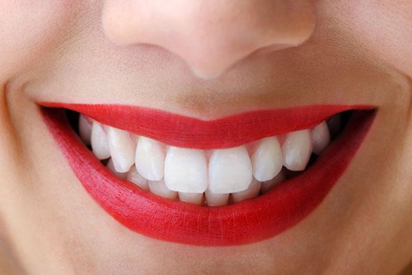 beyaz dişler
