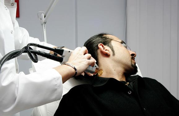 lazer-epilasyon